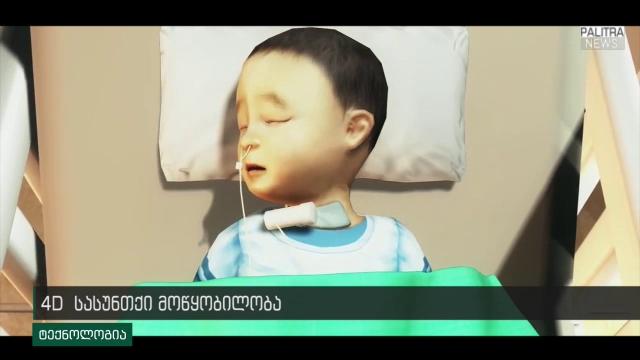 4D სასუნთქი მოწყობილობა - ინოვაციურმა იმპლანტმა უკვე 3 ჩვილი გადაარჩინა