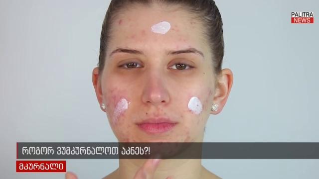 როგორ ვუმკურნალოთ გამონაყარს სახეზე? - აკნეს გამომწვევი მიზეზები და მკურნალობის გზები